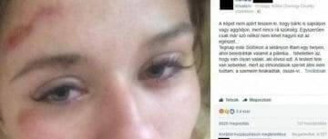 pszichológus budapest_renáta_Skultéti-Szabó_Katalin